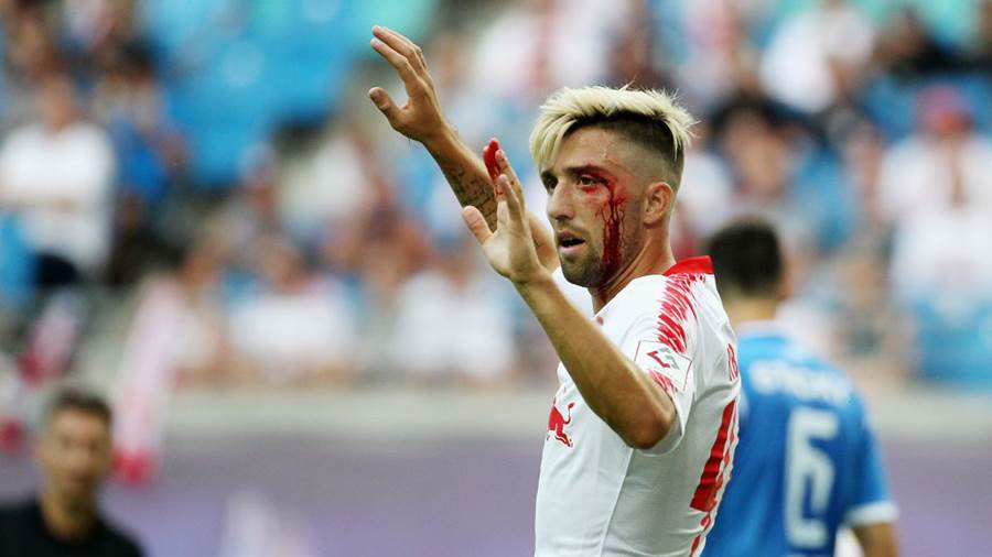 LEIPZIG, GERMANY - AUGUST 09:   Kevin Kampl of Leipzig with bloody face during the UEFA Europa League Third Qualifying Round: 1st leg between RB Leipzig and Universitatea Craiova at Red Bull Arena on August 09, 2018 in Leipzig, Germany. (Photo by Karina Hessland-Wissel/Bongarts/Getty Images)